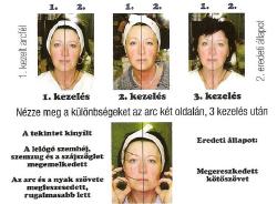 mezoterapia-luxus-hatanyagokkal-250